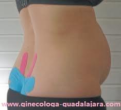kinesio-embarazada